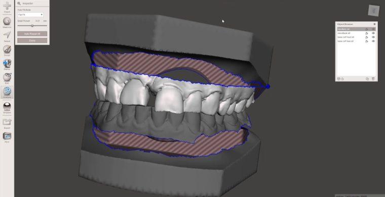 Tutorial : Soclage d'un scan intra-oral avec Meshmixer